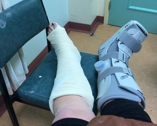 Mum breaks ankles
