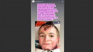 TikTok Ban Young Disabled Wichitan Account, Restored After Slam TikTok Death