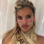 TV Star Reveals Scarring, Temporary Blindness From TikTok Freckle Trend TikTok Death