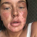 TikTok Egg Hack Leaves Woman With Serious Burns TikTok Death